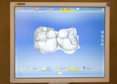 Progetto ed esecuzione del manufatto protesico con sistema CAD-CAM
